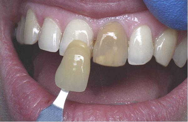Как сделать зубы светлей 396