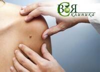 Лазерное удаление или электрокоагуляция кожных новообразований в центре «Своя клиника». Скидка до 65%