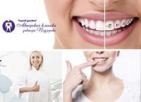 Иметь ровные зубы здорово! Установка брекет-системы в авторской клинике доктора Подзорова «Город улыбок». Скидка 90%
